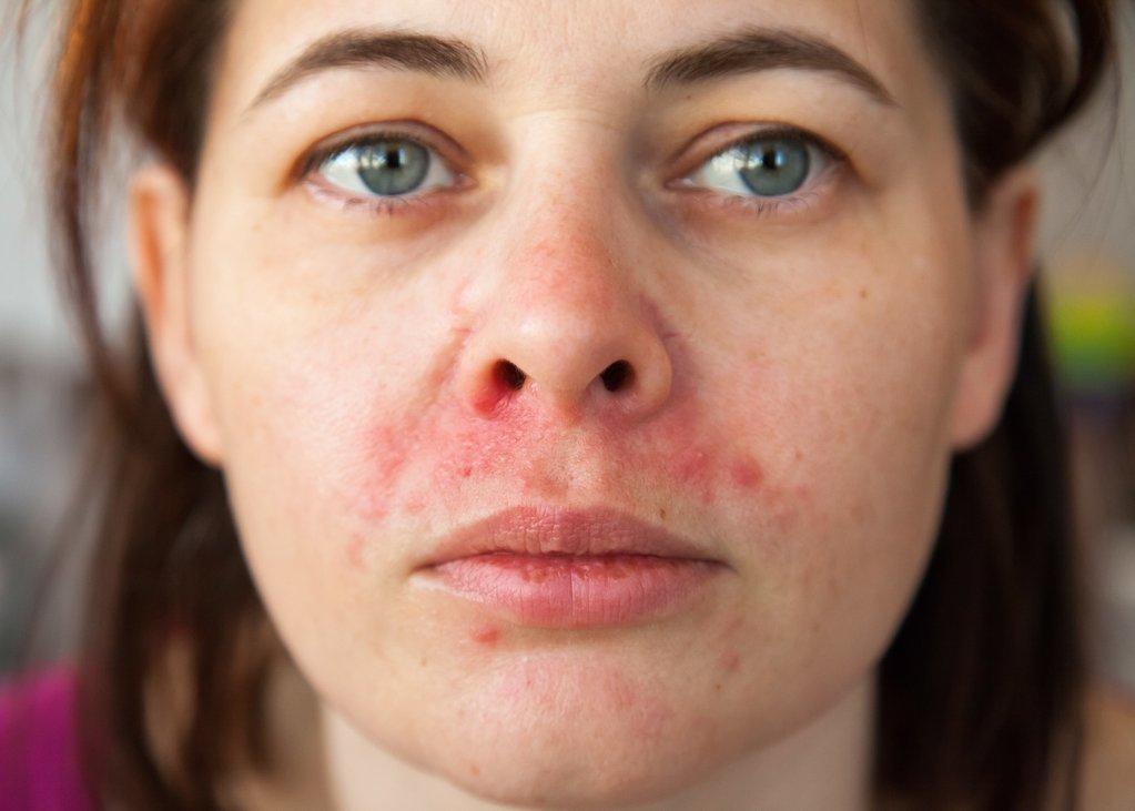 Periorální dermatitida jako psychosomatické onemocnění